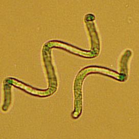 La Spiruline est une cyanobacterie
