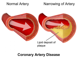 Artère encombrée par des lipides